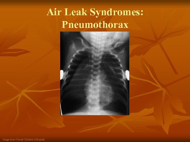 Air Leak Syndromes: Pneumothorax Image from Virtual Children's Hospital
