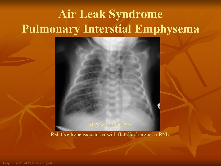 Air Leak Syndrome Pulmonary Interstial Emphysema RDS with right PIE. Relative hyperexpansion with flat