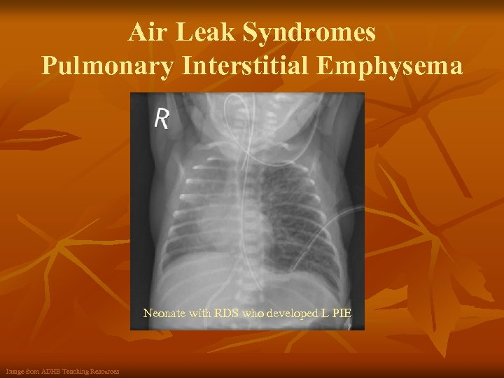 Air Leak Syndromes Pulmonary Interstitial Emphysema Neonate with RDS who developed L PIE Image