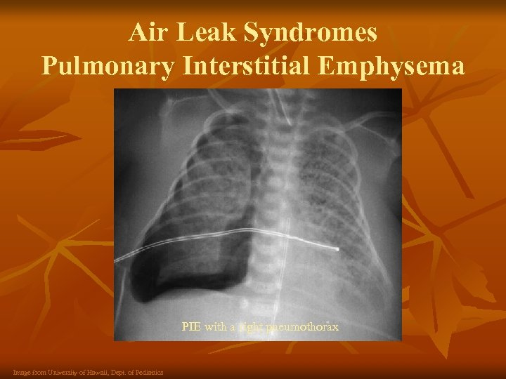 Air Leak Syndromes Pulmonary Interstitial Emphysema PIE with a right pneumothorax Image from University