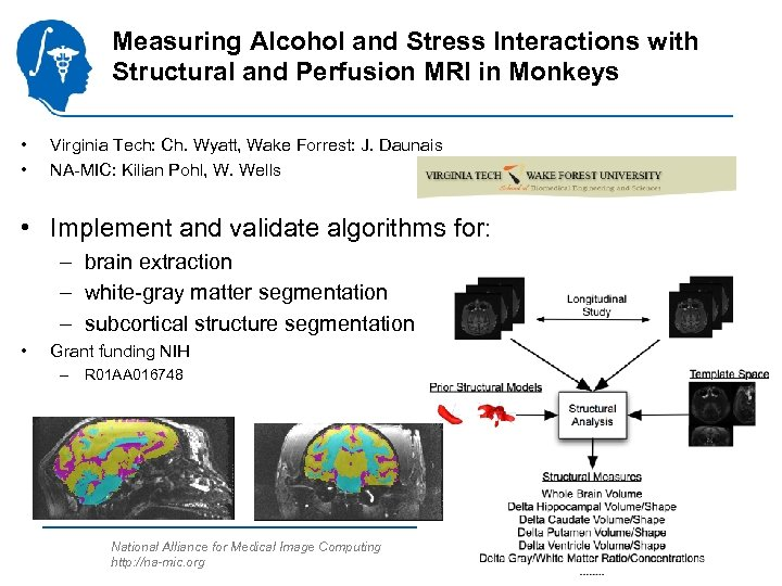 Measuring Alcohol and Stress Interactions with Structural and Perfusion MRI in Monkeys • •