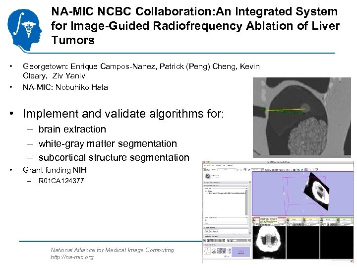 NA-MIC NCBC Collaboration: An Integrated System for Image-Guided Radiofrequency Ablation of Liver Tumors •