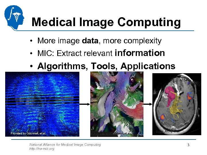Medical Image Computing • More image data, more complexity • MIC: Extract relevant information