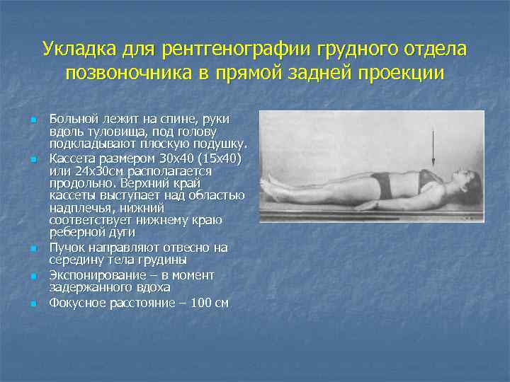 Укладка при рентгенография грудного отдела позвоночника укладка