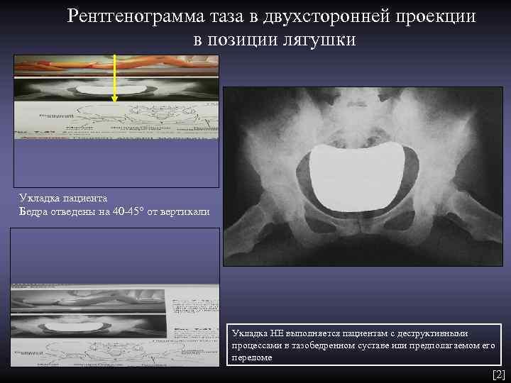 Рентгенограмма таза в двухсторонней проекции    в позиции лягушки