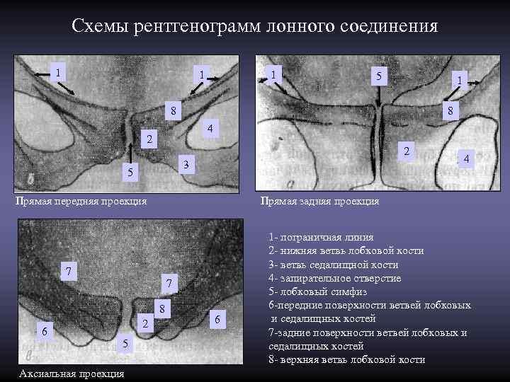 Схемы рентгенограмм лонного соединения   1