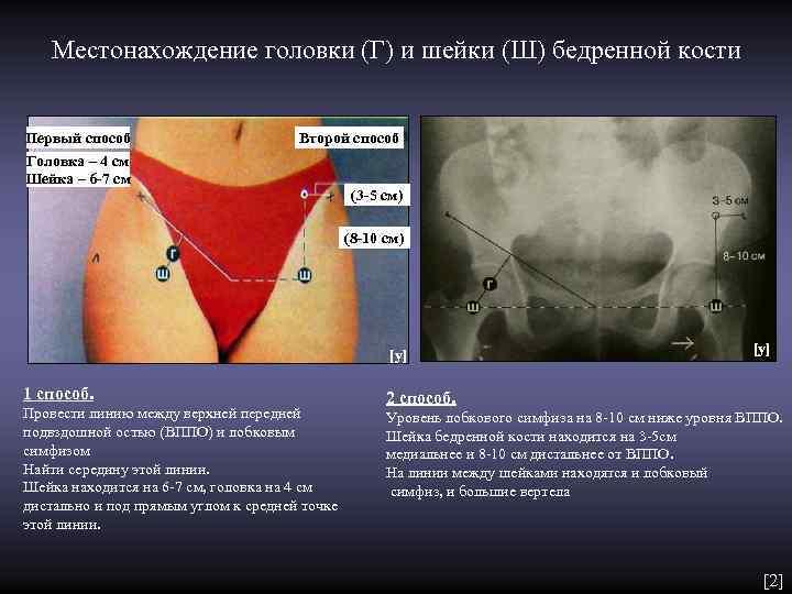 Местонахождение головки (Г) и шейки (Ш) бедренной кости  Первый способ