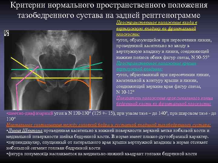 Критерии нормального пространственного положения  тазобедренного сустава на задней рентгенограмме