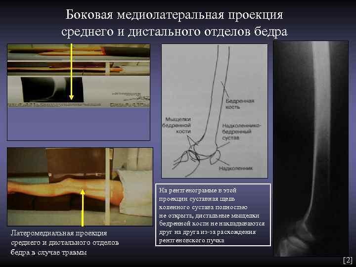 Боковая медиолатеральная проекция    среднего и дистального отделов