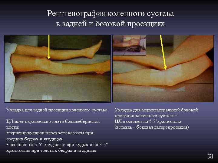 Рентгенография коленного сустава     в задней и боковой