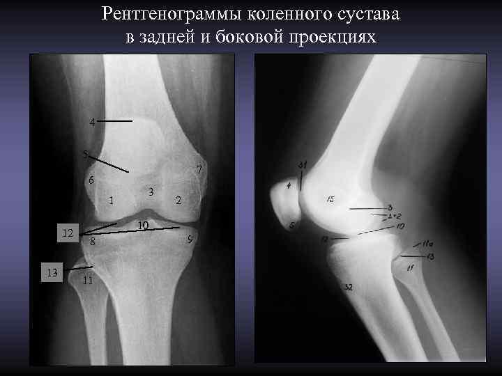 Рентгенограммы коленного сустава     в задней и боковой
