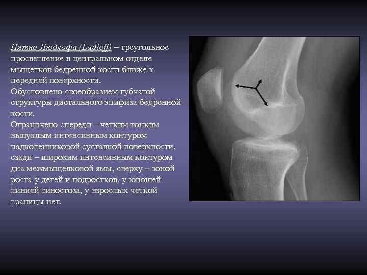 Пятно Людлофа (Ludloff) – треугольное просветление в центральном отделе мыщелков бедренной кости ближе к