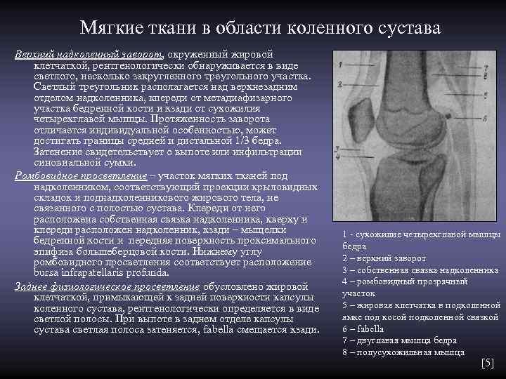 Мягкие ткани в области коленного сустава Верхний надколенный заворот, окруженный жировой