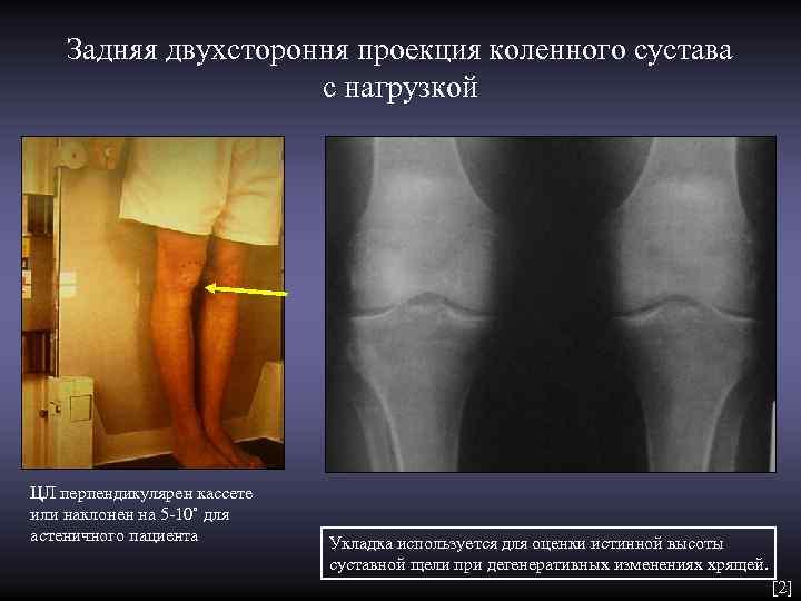 Задняя двухстороння проекция коленного сустава     с нагрузкой ЦЛ