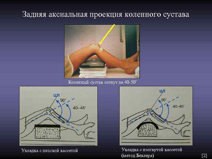 Задняя аксиальная проекция коленного сустава     Коленный сустав согнут на 40