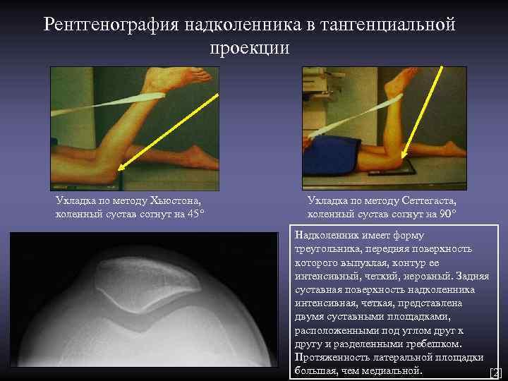 Рентгенография надколенника в тангенциальной    проекции Укладка по методу Хьюстона,  Укладка