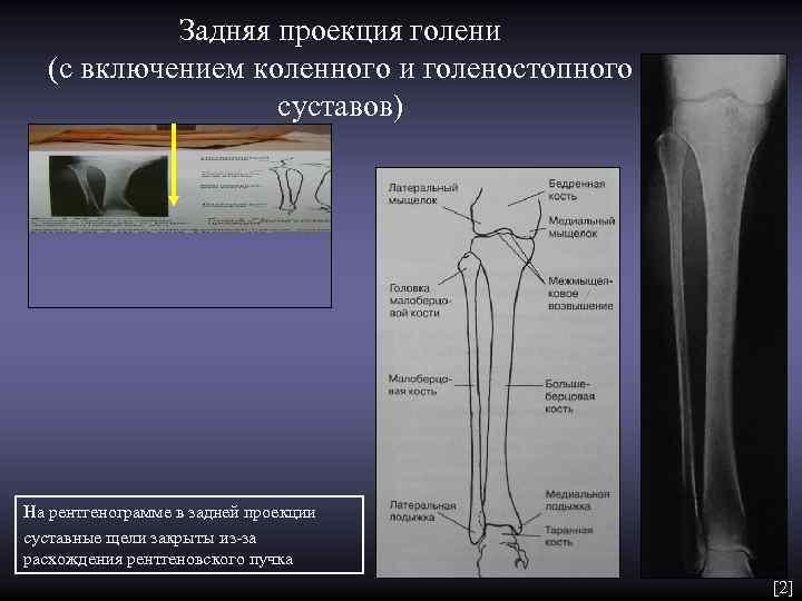 Задняя проекция голени  (с включением коленного и голеностопного