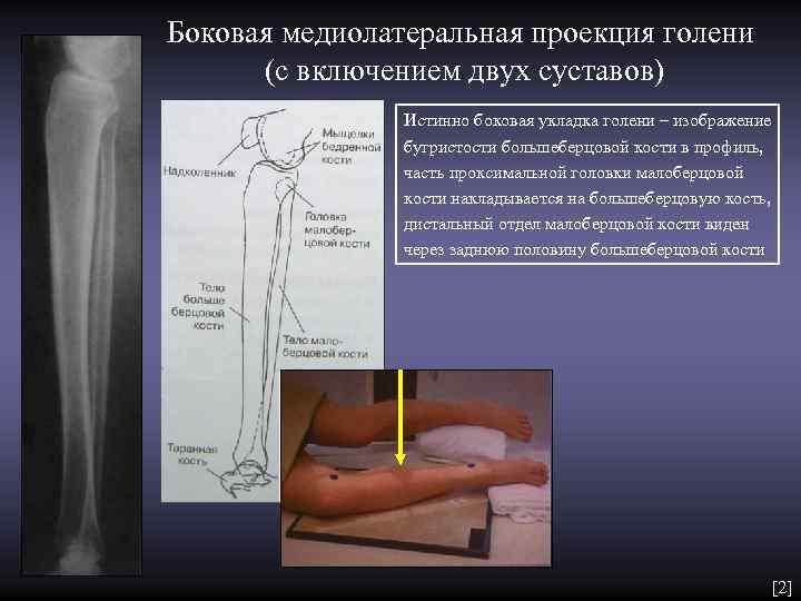 Боковая медиолатеральная проекция голени  (с включением двух суставов)   Истинно боковая укладка