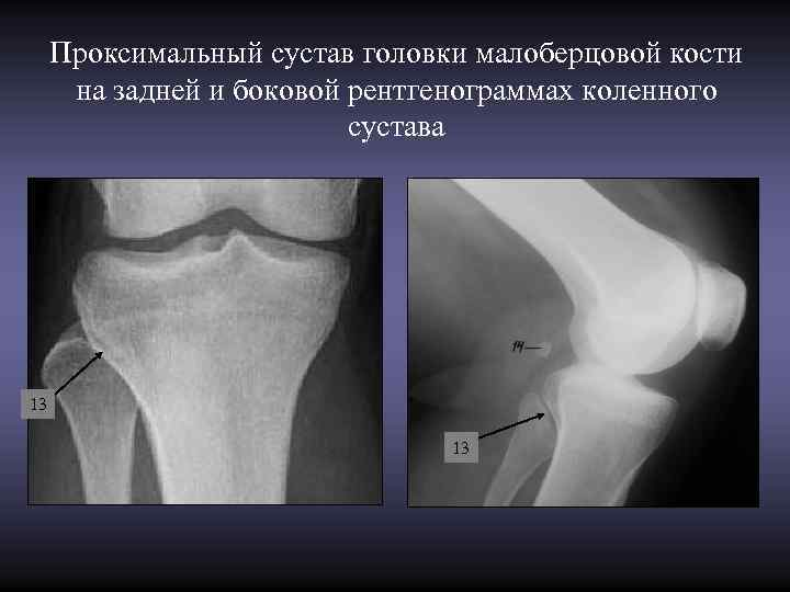 Проксимальный сустав головки малоберцовой кости  на задней и боковой рентгенограммах коленного