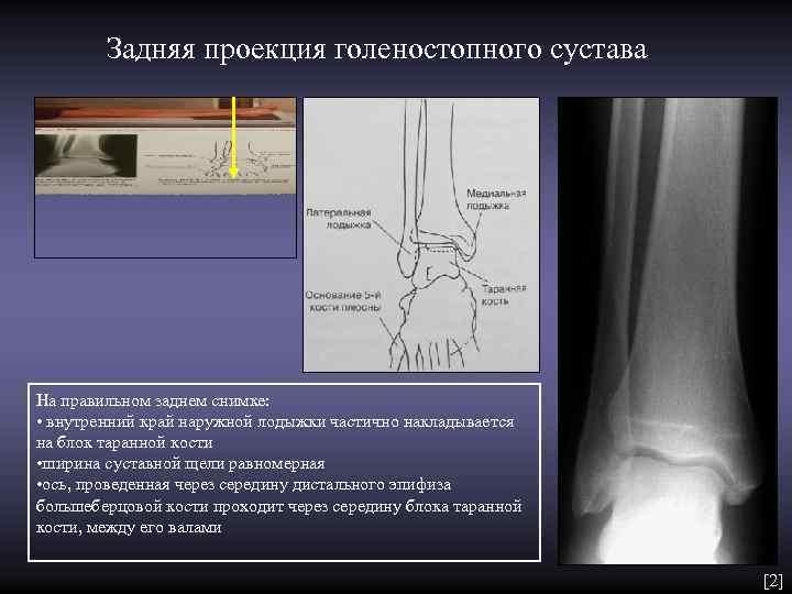 Задняя проекция голеностопного сустава На правильном заднем снимке:  • внутренний край