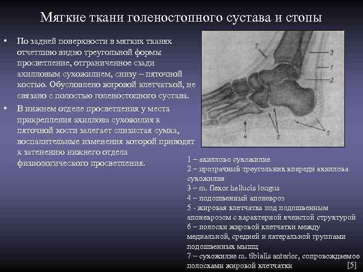 Мягкие ткани голеностопного сустава и стопы •  По задней поверхности