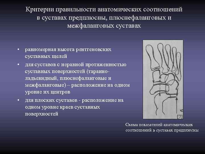 Критерии правильности анатомических соотношений в суставах предплюсны, плюснефаланговых и    межфаланговых