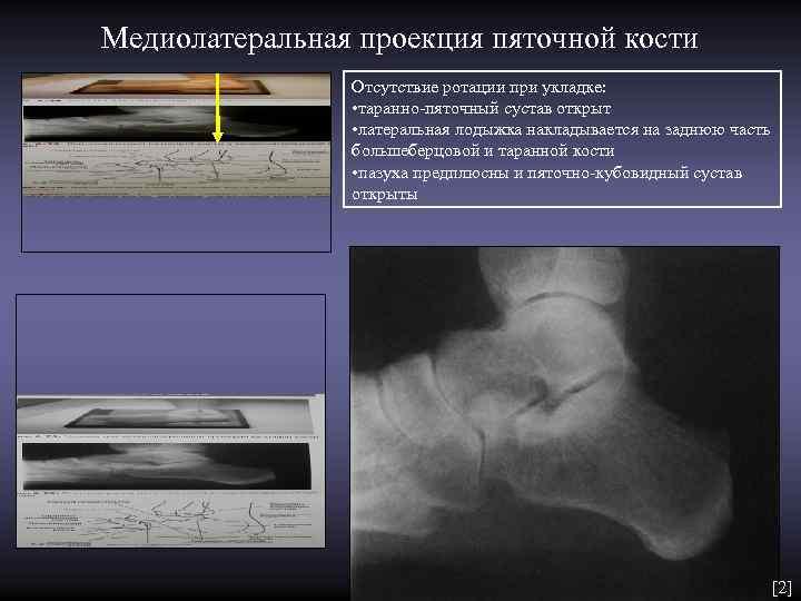 Медиолатеральная проекция пяточной кости   Отсутствие ротации при укладке:    •