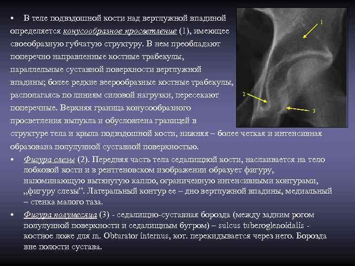 • В теле подвздошной кости над вертлужной впадиной     1