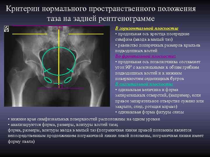 Критерии нормального пространственного положения  таза на задней рентгенограмме     В