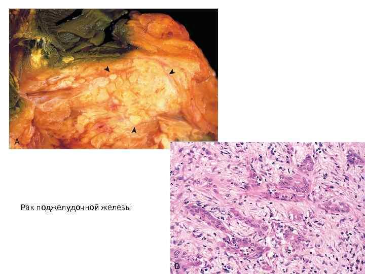Картинка рак поджелудочной железы