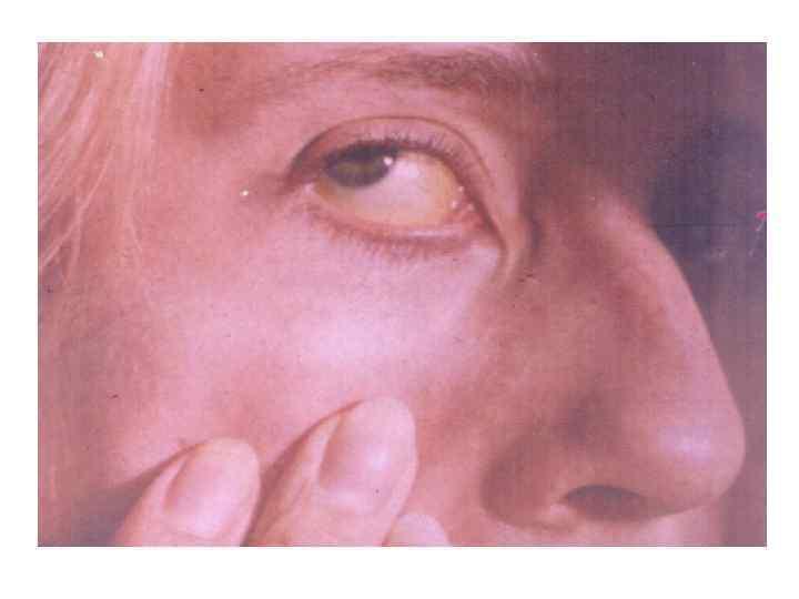 Гепатиты лекция инфекционные болезни
