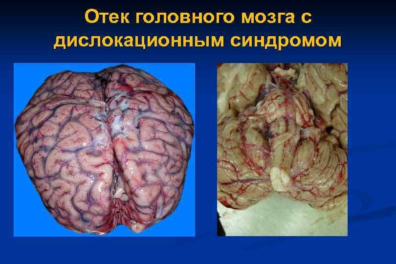 картинки отек головного мозга вал предназначен для