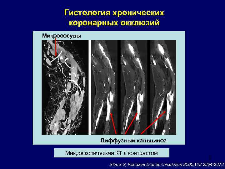 Диффузный кальциноз