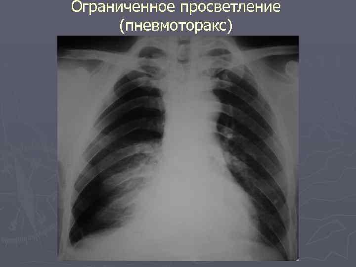 Ограниченное просветление (пневмоторакс)
