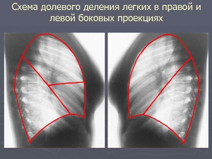 Схема долевого деления легких в правой и левой боковых проекциях