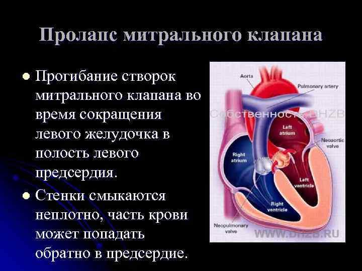 Пролапс митрального клапана у беременных 78