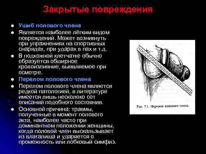 sovmestimost-chlena-i-vlagalisha