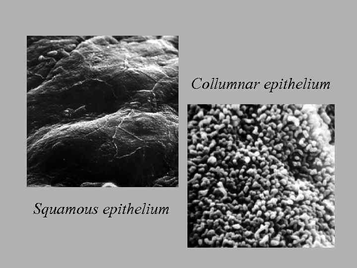 Collumnar epithelium Squamous epithelium