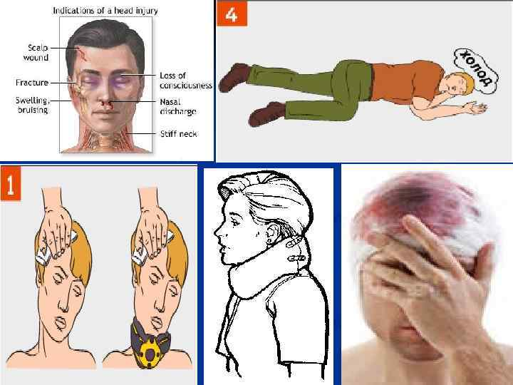 how to administer cardio pulmonary resuscitation What is cpr cpr is an abbreviation for cardio-pulmonary-resuscitation it is manually pumping a persons heart and breathing for them is it dangerous.