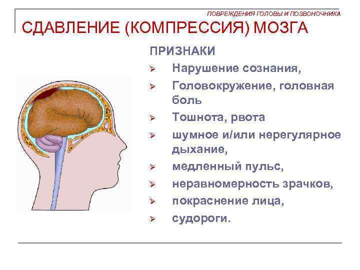 Ощущение сжатия головы головокружение
