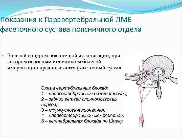 лечение фасеточного болевого синдрома