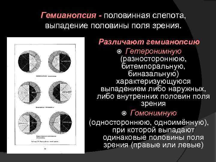 кристаллы правосторонняя гемианопсия картинки фото оставляет желать