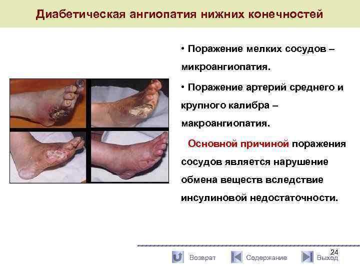 Ангиопатия нижних конечностей при диабете 2типа