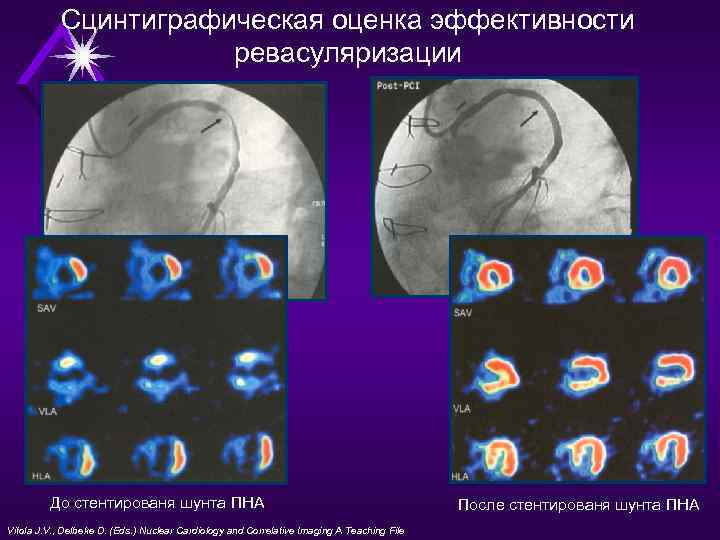 nuclear cardiology and correlative imaging a teaching file