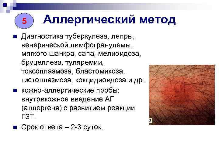 5 n n n Аллергический метод Диагностика туберкулеза, лепры, венерической лимфогранулемы, мягкого шанкра, сапа,