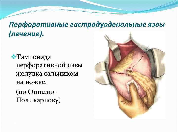 достоверным рентгенологическим признаком перфорации гастродуоденальной язвы является