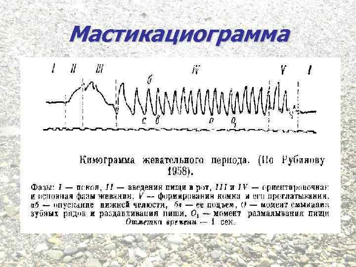 Мастикациограмма