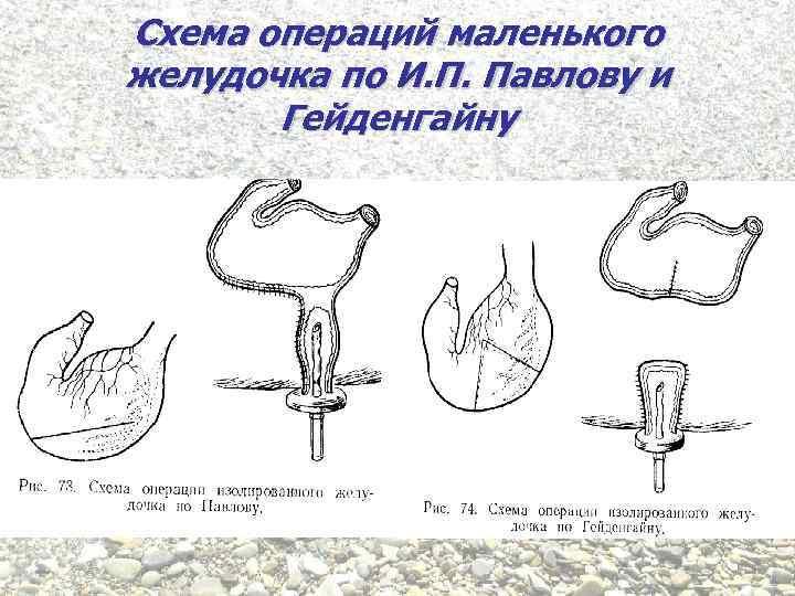 Схема операций маленького желудочка по И. П. Павлову и Гейденгайну
