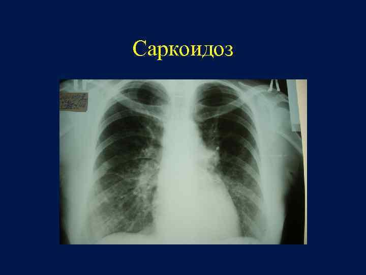 Диета Саркоидоз Легких. Саркоидоз лёгких: симптомы, лечение и диета