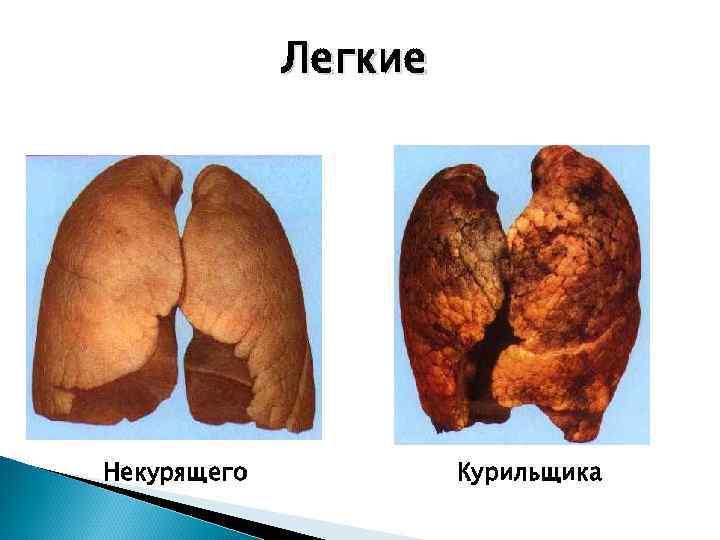Легкие Некурящего  Курильщика